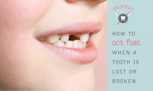 How To Act Fast When a Tooth Is Lost or Broken